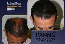 Tratamiento Caída de Pelo, Alopecia o Calvicie Dr. Panno / Tratamiento para la caída del precio y alopecia. Clínica Dr. Panno en Marbella. Terapia Regenerativa Antialopécica. Recupera tu pelo sin cirugía.