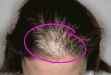 Women hair alements