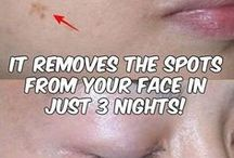 potato and lemon to remove spots in your face
