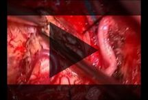 Educational and Surgical Videos
