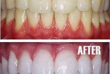 teeth treatment