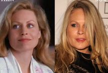 Beverly D'Angelo Plastic Surgery