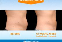 CoolSculpting / CoolSculpting's unique technology uses controlled cooling to freeze and eliminate unwanted fat cells without surgery or downtime.  The procedure is FDA-cleared, safe and effective. The results are lasting and undeniable.