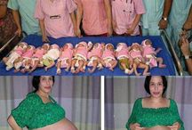 Incredible multiple birth