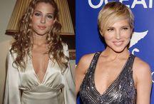 Les stars et la chirurgie esthétique : Photos avant/après