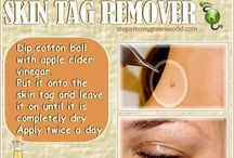 HOW TO RID SKIN TAGS