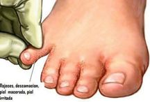 Hongos pies
