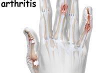 Health - Psoriatic Arthritis