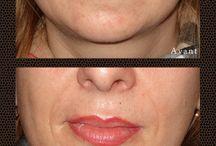 Maquillage permanent des lèvres - Audreyrojo.com / Mon travail de maquillages permanents naturels des lèvres en dégradé et voiles de couleurs subtils, à Lavaur dans le Tarn, à mi chemin entre Toulouse, Albi & Castres.