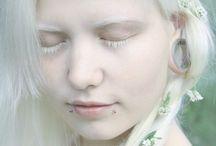 albino beauty