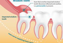 Wisdom Teeth Extraction Dubai