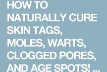 Skin tags, moles, warts, clogged pores and age spots