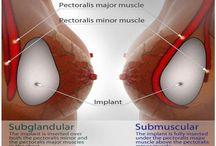 Meme (Göğüs) Büyütme Ameliyatı ~ Augmentasyon Mammaplasti / Meme büyütme cerrahîsi aşağıda belirtilen çeşitli nedenlerle yapılan cerrahî bir girişimdir; * Kişisel sebeplerle memelerinin küçük olduğunu düşünen kadınlarda vücut hatlarını düzeltmek için, * Gebelik sonrası meme hacmindeki kaybı düzeltmek için, * Meme büyüklüğünde simetrinin sağlanması için, * Çeşitli durumlarda memeyi yeniden oluşturmak için, * Tıbbî veya kozmetik nedenlerle yerleştirilen meme implantlarının (protezlerinin) değiştirilmesi için.