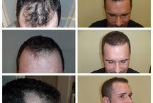 PHAEYDE Klinika / włosów, przeszczep włosów, włosy implantu, wypadanie włosów, FUE