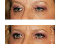 Eye Area Rejuvenation at Michael Law MD Aesthetic Plastic Surgery