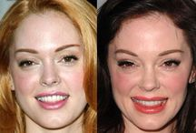 Celebrity plastic surgery before and after photos / celebrity plastic surgery before and after photos