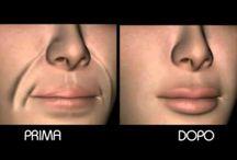 x rughe intorno bocca