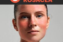 Rosacee