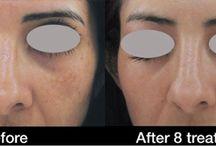 Carbon Laser Facial