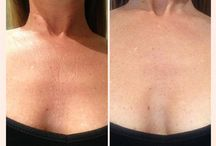 Chest Wrinkles /  Prevent and eliminate chest, cleavage and neck wrinkles.