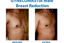 Gynecomastia Treatment Before After Image / Gynecomastia Treatment Before After Image : For further information, are available visit our website: http://www.bestgynecomastiaindia.com  Call now +91- 9958221983