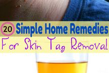 Home Remedies and more...