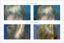 Trasplante de pelo. Antes y después / Ejemplos de trasplantes de pelo, cómo estaba el paciente antes del trasplante y después de realizarlo