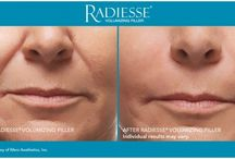 Radiesse / Radiesse is a type of filler. It adds volume to areas of shadowing and lines that form from the aging process. It can also be used to alleviate depressions from scars. I use it commonly to give a midface lift by restoring volume to the cheeks, the nasolabial folds, temples and jowls. This is where artistry, technique and experience become critical to achieving a natural and balanced result.