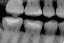 Blog Posts / Check out our board for blog posts for all you need to know about your teeth and dentistry.