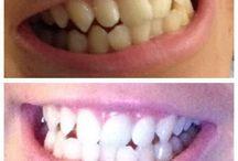 Nuskin Ap24 toothpaste / #results #ap24 #teeth #whiteningtoothpaste #dental #toothpaste #teethwhitening #nuskin #happy #smile