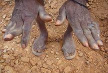 Mãos / Tenho apenas duas mãos e o sentimento do mundo. Carlos Drummond de Andrade