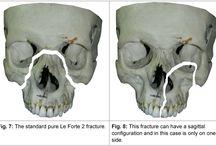 Anatomy - broken bones