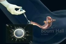 """Knowing IVF """"Insemination"""" - Bourn hall Clinic India"""