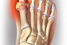 Gout / Gout, one of the most common forms of inflammatory arthritis, often causes extreme pain, joint swelling, warmth, and redness. It is caused by a buildup of uric acid crystals in the soft tissue of a joint.