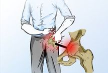 hip impingement