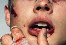 кровяка