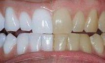 dentes brancos