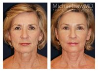Full Facial Rejuvenation At Michael Law MD Aesthetic Plastic Surgery