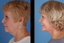 Face Yoga Workouts To Rejuvenate Your Neck And Face / Face Regeneration Exercises For Generating A No Surgery Facelift