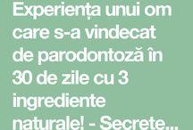 Paradontoza