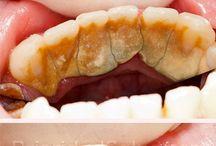 receta para eliminar el sarro de los dientes