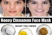 pimples remedy