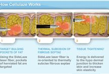 Cellulaze / Cellulite treatment with Cellulaze at our cosmetic clinic.
