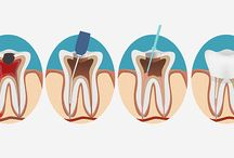 root canal causing cancer the truth abt cancer