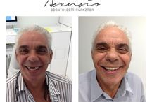 Dental Implants Asensio Advanced Dentistry