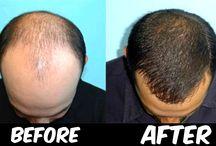 Baldness cure
