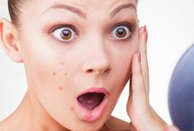 Acne Treatment / A board having more information about acne scar treatment.