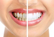 Tooth Whitening in San Diego / You can easily improve your smile with tooth whitening. Many of the current teeth whitening products are designed for use at home. You can get more information at tooth whitening in San Diego, California. - See more at: http://www.extremesmilemakeover.com/reasons-really-need-tooth-whitening-san-diego