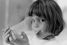 Milk, Cheese, Dairy Allergies - Research and Tips / Milk, Cheese, Dairy Allergies