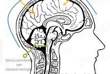 Meningitis Cure Home Remedy Tibbe Nabi